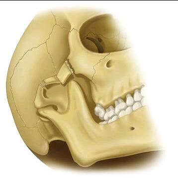 Zygomatic complex fractures
