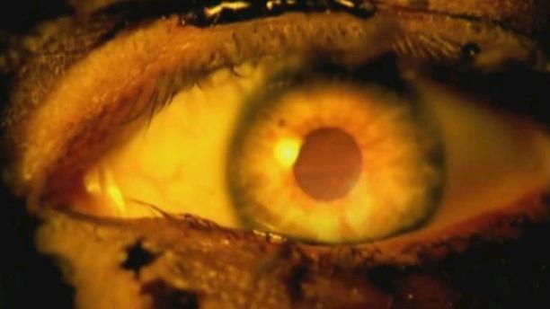 Eyez Of the Insane