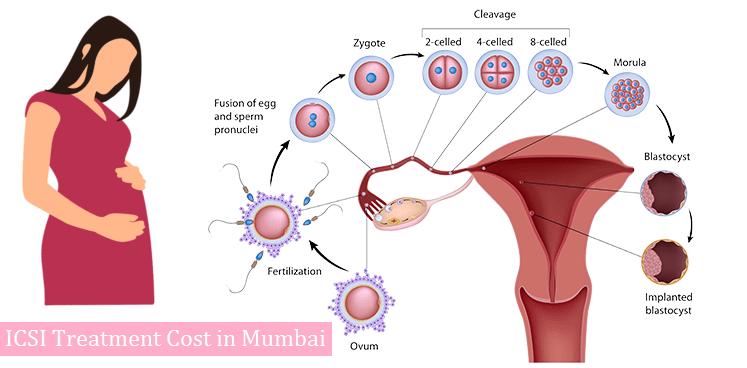 IVF Doctor in Varanasi   Dr. Divya Agarwal   Elawoman