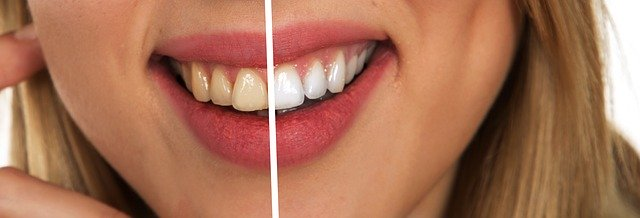 Should you take a whitening process or product to whiten your teeth?